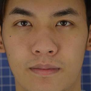 全肋骨综合+鼻头缩小.鼻翼缩小矫正术