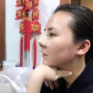 超龙 隆鼻