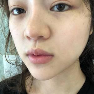 唇综合整形