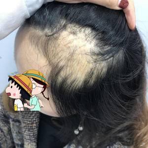 我也想夏天扎头发