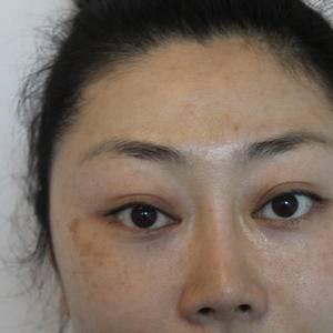 北京南加高医生种植眉毛恢复效果全记录