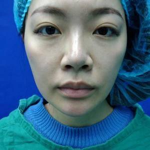 唇部整形手术
