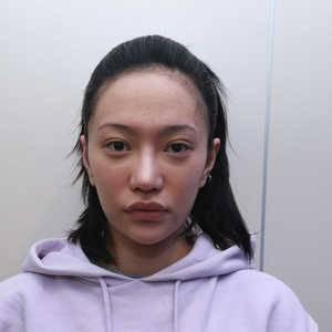 全脸脂肪胶填充打造童颜少女脸