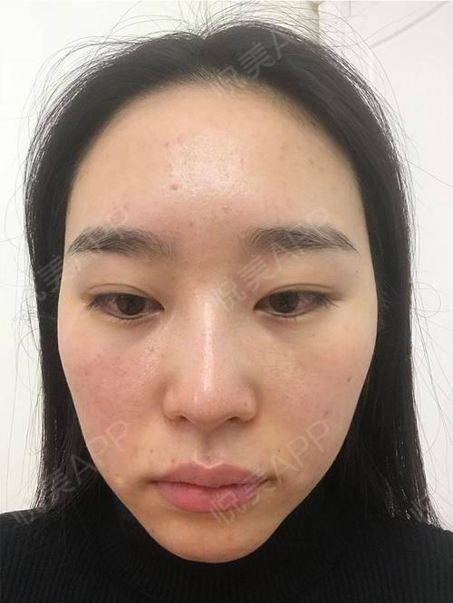 【上海华美张琳琳主任美肤套餐】对于这次的祛痘体验我是很满意的,从满脸痘痘到现在我的脸上没有痘痘了,现在也不像以前那样经常...