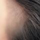 从我记事起我就记得我是齐刘海,就是因为遮挡我的发际线,我的发际线很高。一直说敢露出额头的就是真...