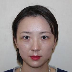 发际线种植,大圆脸变成精致小V脸