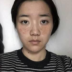 脸上有斑再怎么洗脸都是没用的