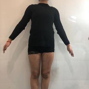 大腿吸脂后的改变