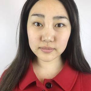 瘦脸针变化
