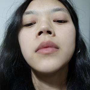 肋软骨隆鼻鼻综合