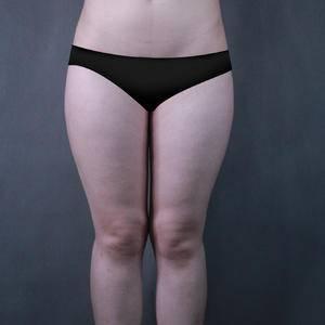 吸脂瘦大腿-无须塑身衣