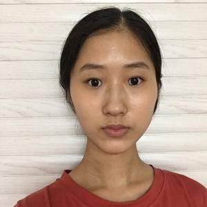 鼻综合手术