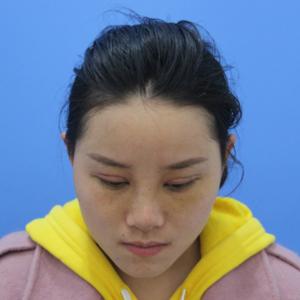 悦Mer_7732083425眼综合+鼻综合术后7天第3页图