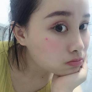 悦Mer_7732083425眼综合+鼻综合术后50天第3页图