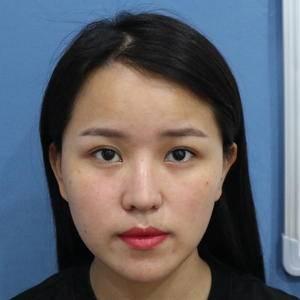 假体隆鼻+半肋鼻综合