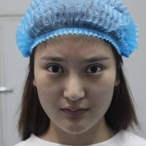 【鼻修复】期待改变!