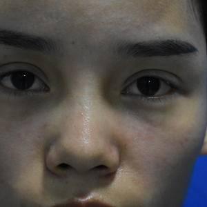 南雅鼻综合+厚唇改薄