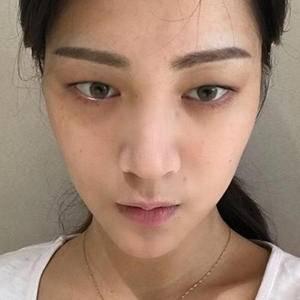 青春综合隆鼻术+全切双眼皮