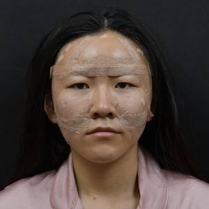 苏州紫馨韩式双眼皮