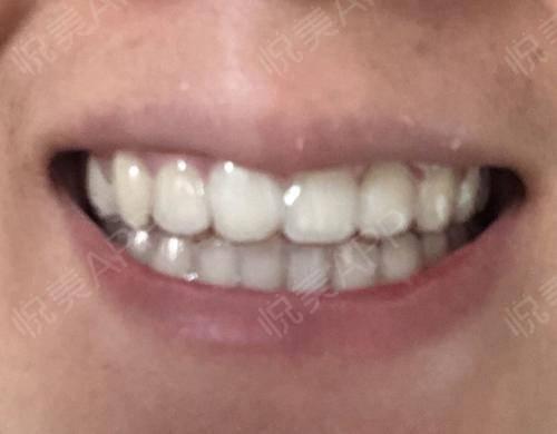 整个戴牙套的过程其实只持续了两年多。本来我以为成年人矫正牙齿时间会比较长,但因为中途我都有按时复诊,也没有出现过很大的意...