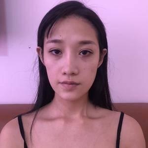 广州艺美鼻修复