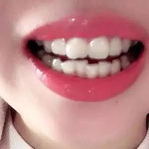 啊啊我的牙终于变美了