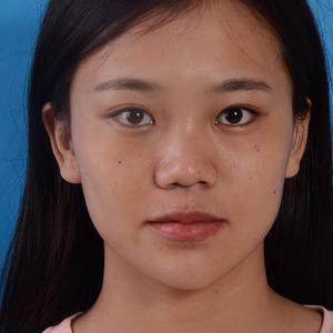 鼻综合手术记录