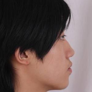 半肋鼻隆鼻