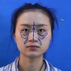 面部整形分享鼻综合&自体脂肪填充