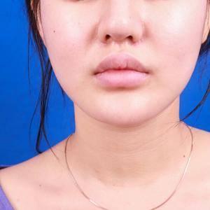 M唇  嘴角上扬 玻尿酸填充全脸