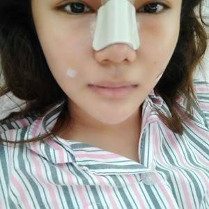 悦Mer_6874686410小燕的鼻综合跟全脸自体脂肪填充术后5天第1页图