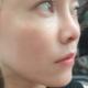 你们的小可爱又来更新日记喽!我做完手术已经过去两个月了,两个月的时间鼻子恢复的更好了。朋友夸我好看了...