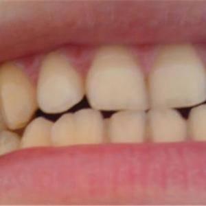 牙齒瓷貼面