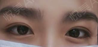 之前的双眼皮一直不是很明显,上眼皮部分感觉脂肪厚厚的,一来面诊才知道是因为眼部脂肪有点多,李艳医生说我眼部本身还是很好看...