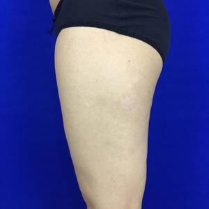 自体脂肪填充+大腿吸脂