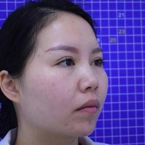 张晓娇【北京丰科星范+衡力瘦脸针】手术当天第2页图
