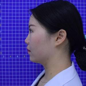 张晓娇【北京丰科星范+衡力瘦脸针】术后10天第2页图