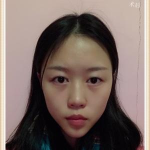 刘缘眼部整形日记