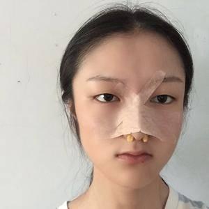 次奥次耳软骨隆鼻术后3天第3页图