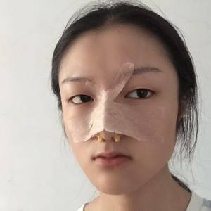 次奥次耳软骨隆鼻术后3天第1页图