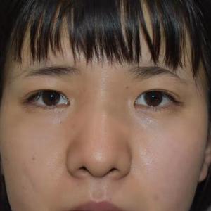 双眼皮术后