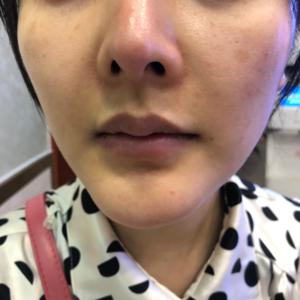 M唇整形术