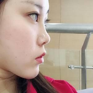 精细化鼻综合