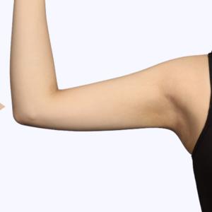 吸脂瘦手臂修复
