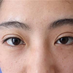 我的眼修复
