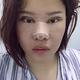 今天是手术后第七天了,我的眼睛和鼻子已经拆线了,脸虽然还是肿的,但能非常非常明显看到脸部已经紧致了,...
