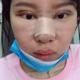 今天是手术后第七天了,我的眼睛和鼻子已经拆线了,脸虽然还是肿的,但能非常非常明显看到太阳穴已经饱满了...