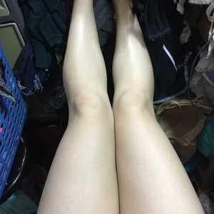 吸脂修复瘦大腿