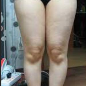 吸脂瘦大腿修复