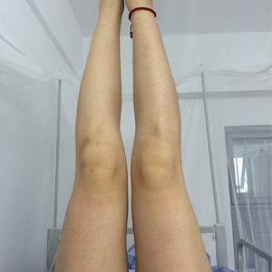 吸脂瘦腿修复
